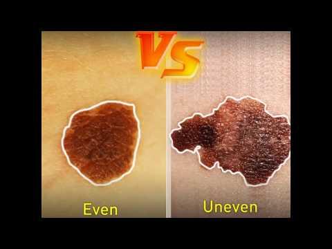 Cancerous Moles Versus Non Cancerous Moles