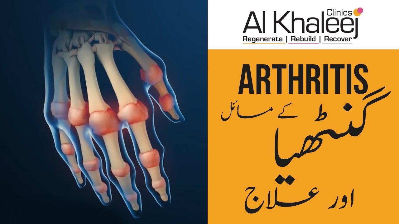Download Arthritis Symptom & Treatment Urdu/Hindi   Joron Ka Dard Ganthiya Ka Ilaj  How to Remove Joints pain