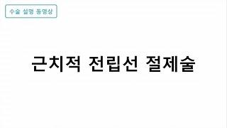 근치적 전립선 절제술