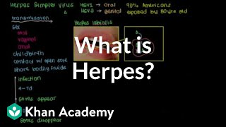 What is herpes?   Infectious diseases   NCLEX-RN   Khan Academy