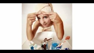 How i got rid of my Acne Nightmare !