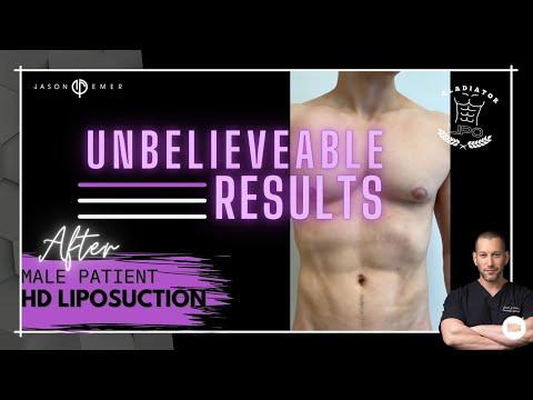 HD Liposuction | Post-Surgery Follow Up | Beverly Hills, CA | Dr. Jason Emer