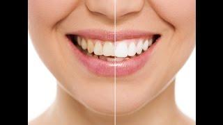 Как правильно чистить зубы. Белые и здоровые зубы в домашних условиях. Как правильно чистить язык.