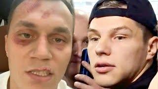 Бой Регбист vs Тарасов Разбил Лицо Тарасова суть конфликта