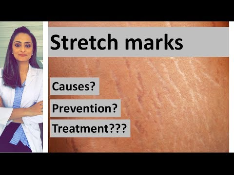 Stretch marks: causes, prevention, treatment | Dermatologist | Dr. Aanchal Panth