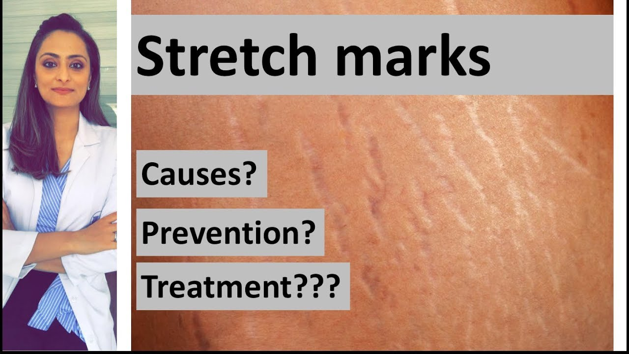 How to Get Rid of Red Stretch Marks While Still Fresh?   HGRSM