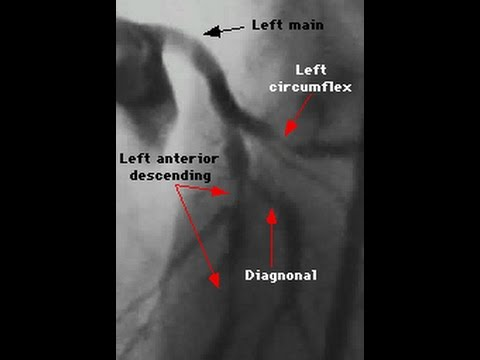 Triple vessel coronary disease