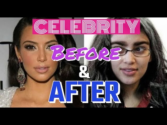 Celebrity Before & After Quiz