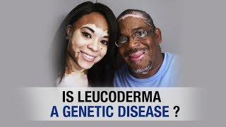 Is Leucoderma a Genetic Disease? || Aimil Healthcare || Dr. Nitika Kohli