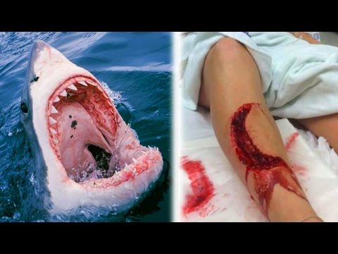 10 Unbelievable Shark Attacks - WARNING GRAPHIC CONTENT!