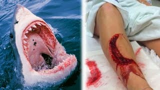 Repeat youtube video 10 Unbelievable Shark Attacks - WARNING GRAPHIC CONTENT!