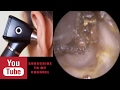 Take earwax - Ear wax removal kit | Little Boy's Earwax Removal by Ear Irrigation