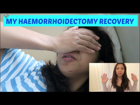 My Haemorrhoidectomy Experience Part2 Recovery Time Youtube