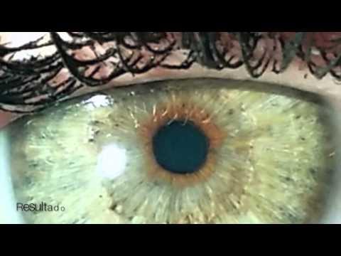 NewEyes Laser Experience - Imágenes antes y después - Español