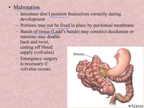 Unit 14.3 Digestive System Disorders