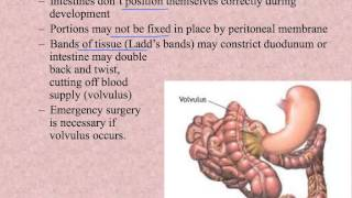 List Of Digestive System Diseases And Disorders