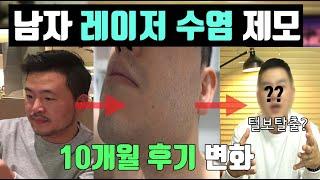 남자 레이저 수염 제모 효과? 10회차 (10개월 기록…