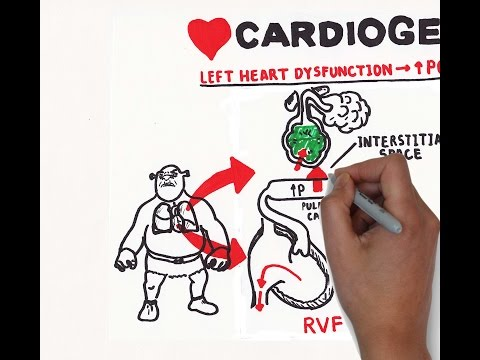 Cardiomyopathy treatment   Circulatory System and Disease   NCLEX-RN   Khan Academy from YouTube · Duration:  7 minutes 37 seconds