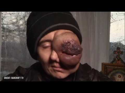 Mothers Eye Growth!  Medical College Case Report