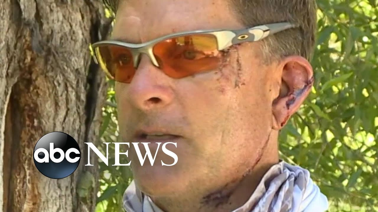 Colorado man clawed by bear inside his own home