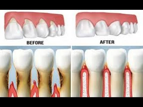 How To Reverse Receding Gum line Without Surgery