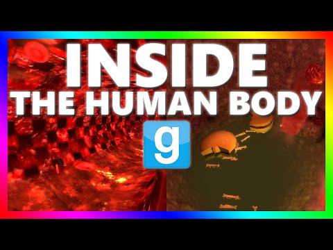 OPERATING INSIDE THE HUMAN BODY?!?!   Gmod Adventure ...