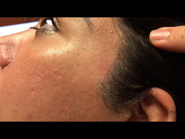 Facelift/Sideburn Hair Transplant Scar Correction HD Close-Up Result