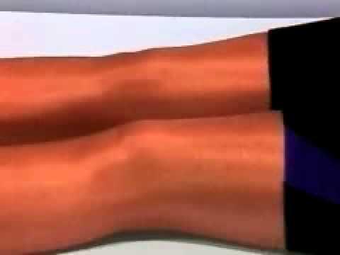 And Arthritis Quad Sets