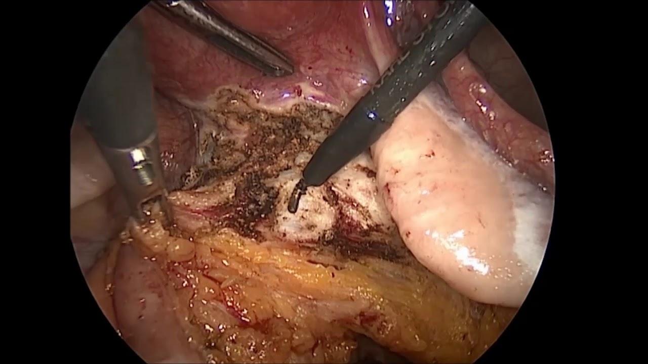 Laparoscopic Vs Transvaginal Cuff Closure After Total Laparoscopic Hysterectomy