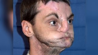 Woman Meets Man Who Received Her Brother's Face in Transplant