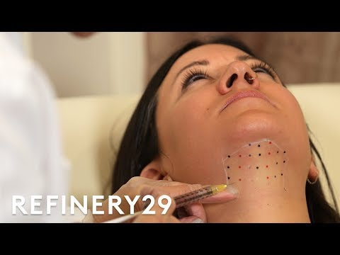 Kybella Double Chin Removal Treatment Up Close | Macro Beauty | Refinery29