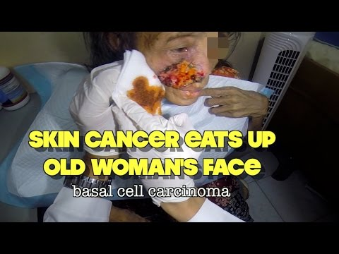 Skin cancer eats up old woman