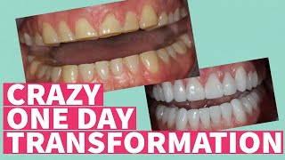 Full Mouth Rehabilitation, Reconstruction, Restoration of SEVERE TOOTH WEAR! - Smile Makeover
