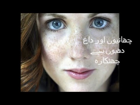 Get Rid Of Freckles With Easy Home Remedies In Urdu/Hindi