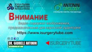 Фаза 2 - активация  дезактивация гидравлического протеза полового члена