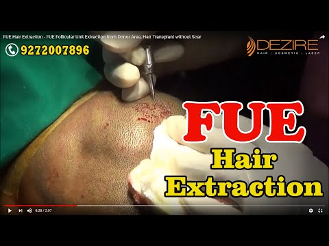 FUE Hair Extraction - FUE Follicular Unit Extraction from Donor Area, Hair Transplant without Scar