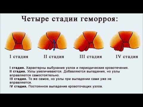 Геморрой - симптомы, лечение, профилактика, причины