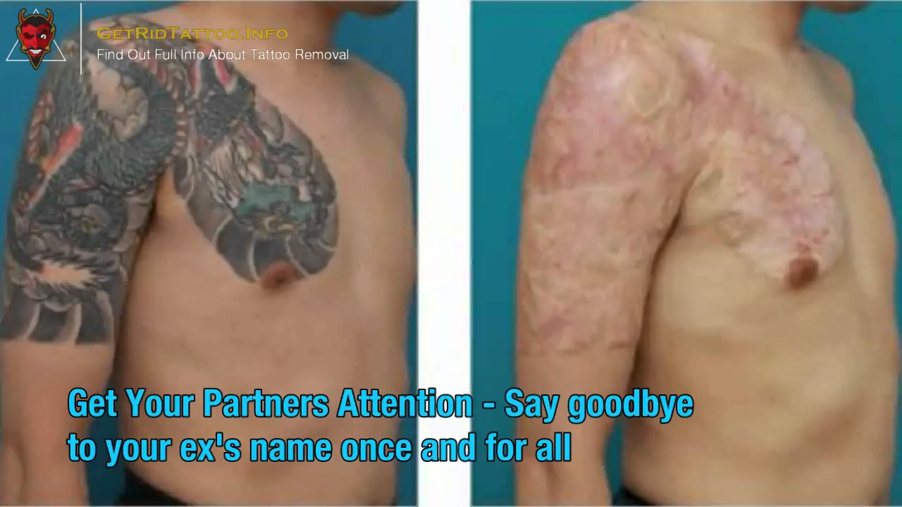 Laser Removal Tattoo Prices – All you need to learn about tattoo ...