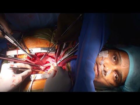 Awake cardiac surgery by Dr Nisarga (Full HD)