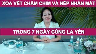 Hướng dẫn xóa vết chân chim nếp nhăn quanh mắt trong 7 ngày cùng Health Coach La Yen 👇👇👇