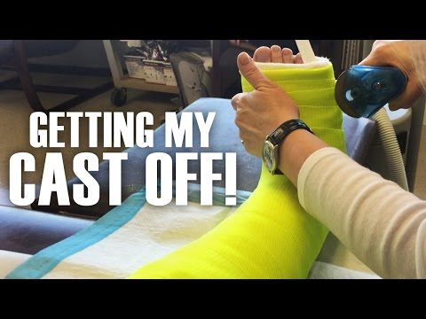 Getting My Cast Off - Broken Leg (Fractured Fibula)