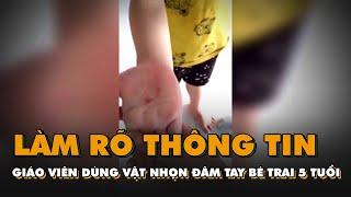 Tin nóng 24h: Làm rõ thông tin giáo viên dùng vật nhọn đâm vào tay bé trai 5 tuổi