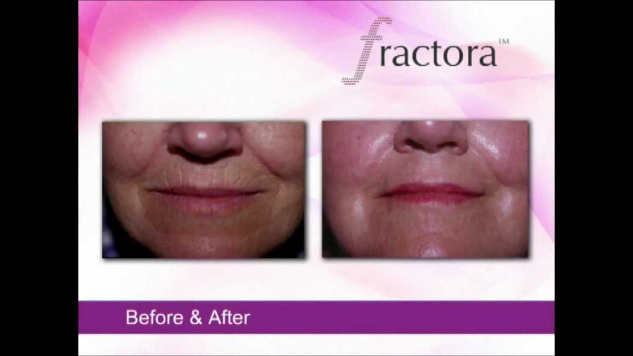 Fractora Before Amp After Video Youtube