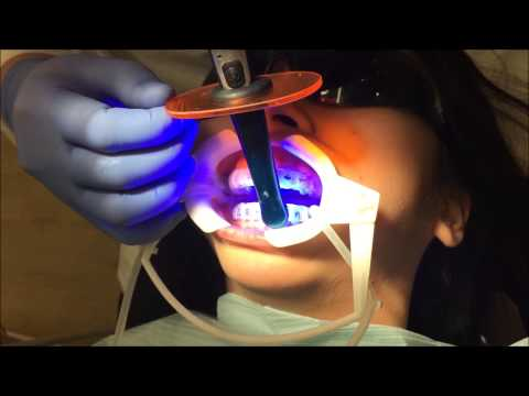Indirect Bonding at First Impression Orthodontics (full length)