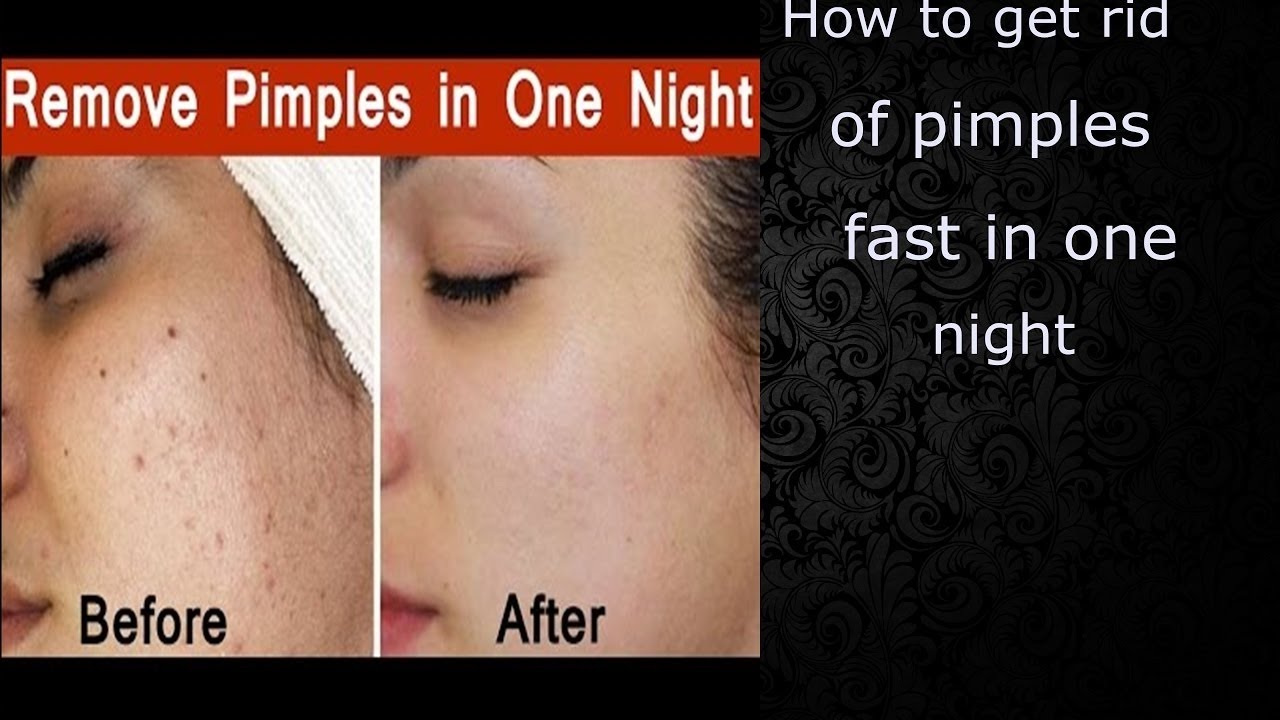 How To Remove Pimples Naturally And Permanently At Home