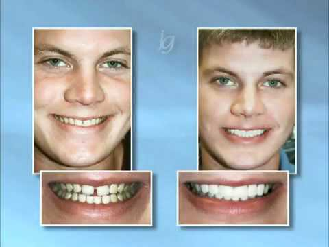 Saskatoon Dentist Cosmetic - Before and After