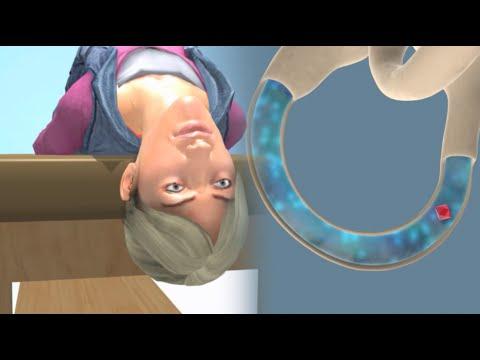 Deep Head Hanging Maneuver to Treat BPPV Vertigo