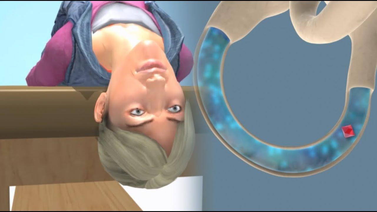 Vertigo Causes, How To prevent, Ayurvedic Treatment | Easy