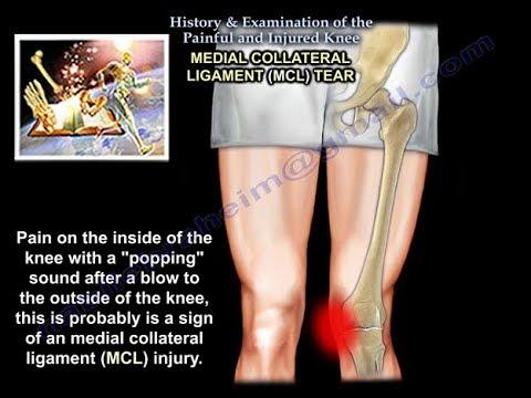 knee pop then pain
