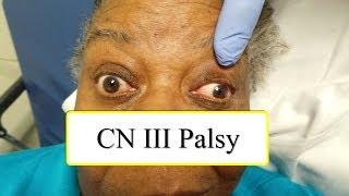 CN III Palsy